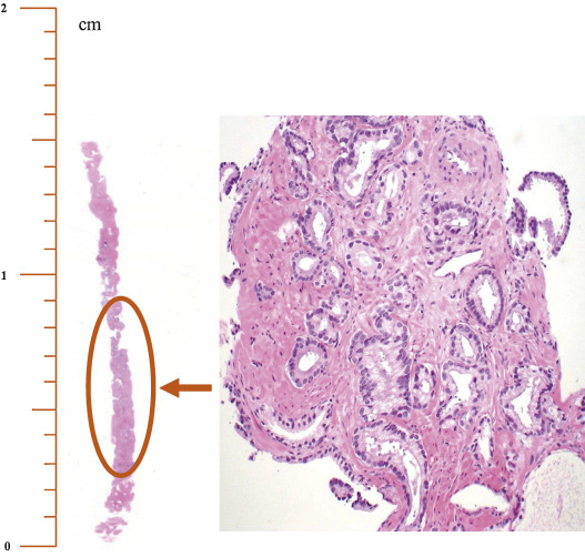 Extent of Cancer of Less Than 50% in Any Prostate Needle Biopsy Core: How Many Millimeters Are There?