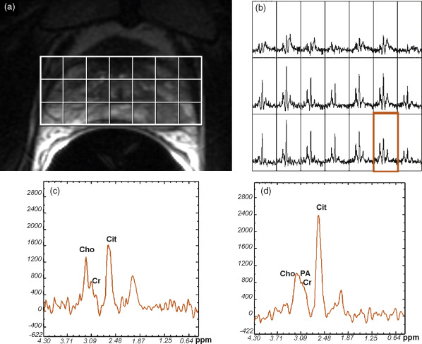 functional magnetic resonance imaging and spectroscopic Functional magnetic resonance spectroscopy of the brain ( fmrs ) uses magnetic resonance imaging (mri) to study brain metabolism during brain activation the data generated by fmrs usually shows spectra of resonances, instead of a.